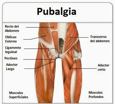 Resultado de imagen para pubalgia deportiva